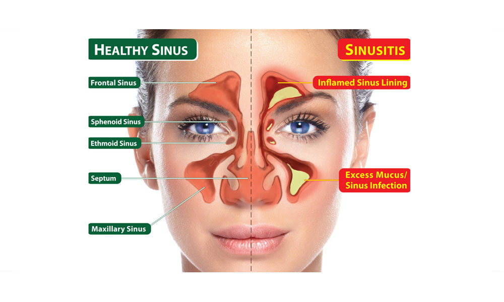 Top Home Remedies For Sinus Infection